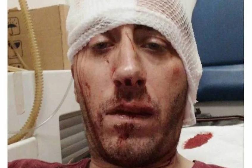 Saopćenje povodom premlaćivanja Vladimira Kovačevića, novinara BNTV