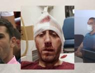 Dvije godine od pokušaja ubistva novinara Vladimira Kovačevića: Napadači iza rešetaka, nalogodavci nepoznati